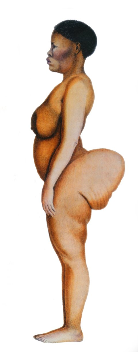 UNSPECIFIED - DECEMBER 31:  Saartjie Baartman called the Hottentot Venus (from Namibia ) she was flaunted as a freak and curios sex object because of her enlarged hypertrophic genital organs and prominent buttock bottom She died in 1815 after a life of-misery and-prostitution  (Photo by Apic/Getty Images)