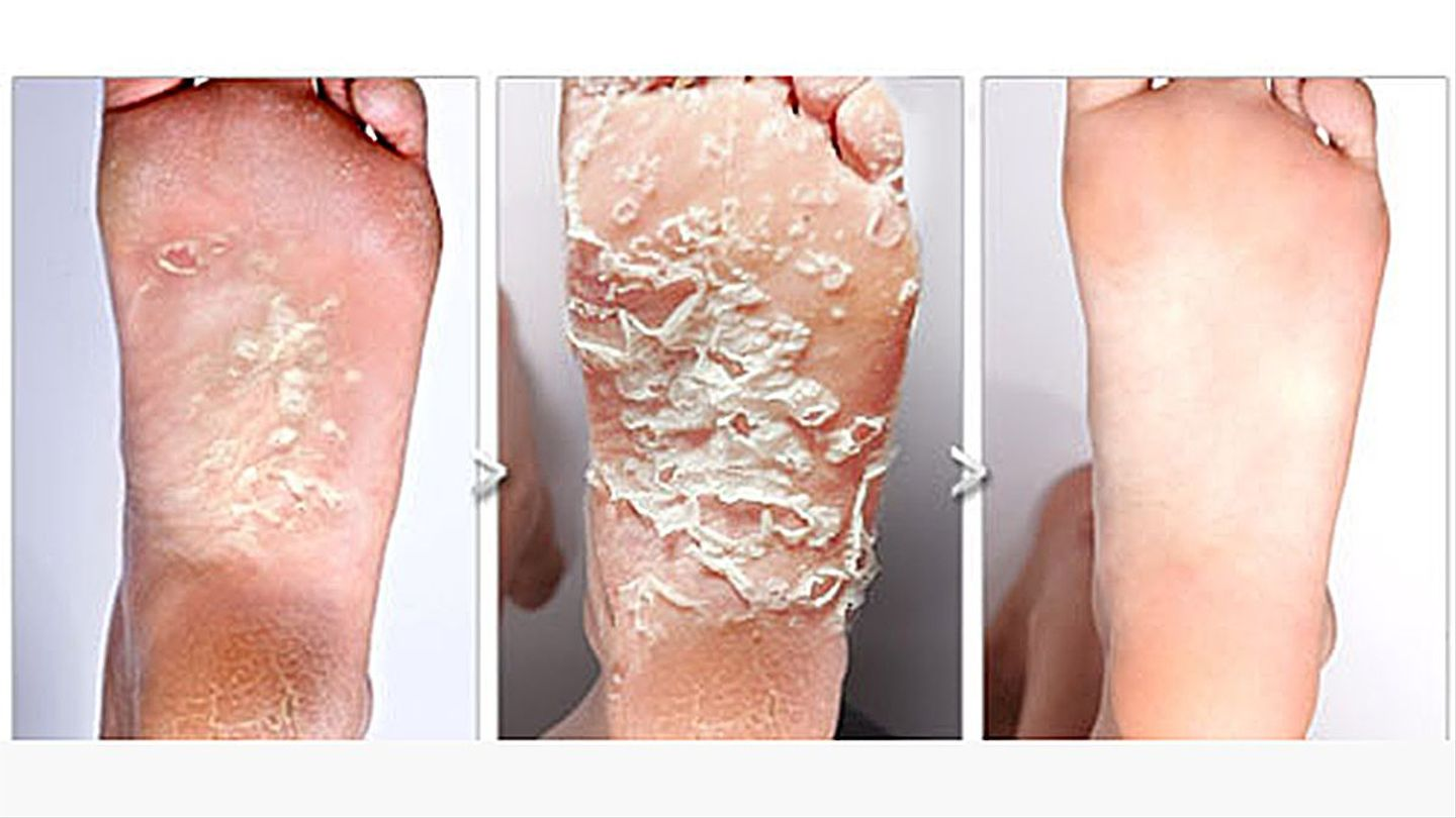 Baby foot peel our favorite dark corner of the internet mtv - Baby voet verkoop ...